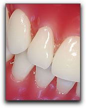 Periodontal Disease Minneapolis