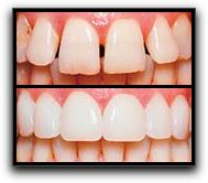 Arlington Prepless Veneers