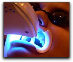 Tooth Whitening Dentistry In Cornwall