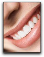San Diego Tooth Whitening