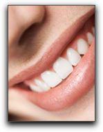 San Diego Tooth Whitening